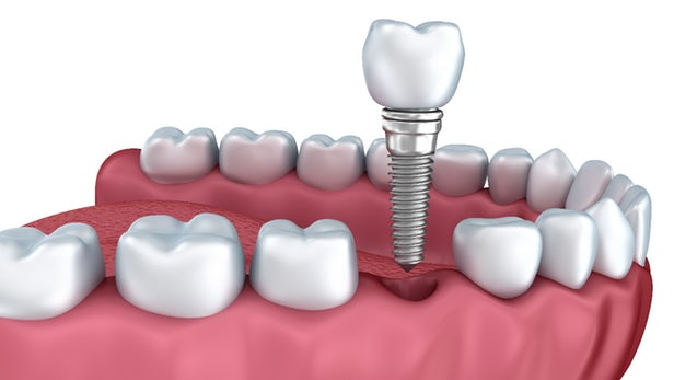 Dental-Implants (1)