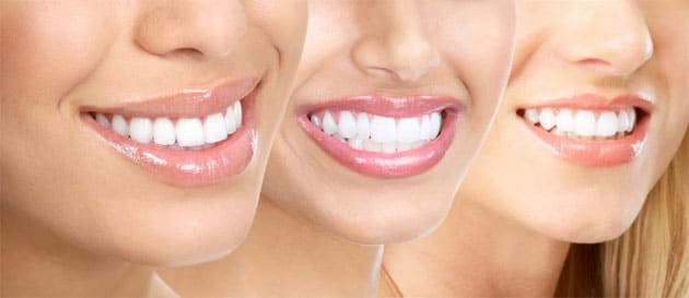 Cosmetic Dental Treatment